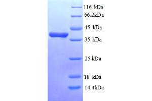 Image no. 1 for Annexin A3 (ANXA3) (AA 5-322), (partial) protein (His tag) (ABIN5713074)