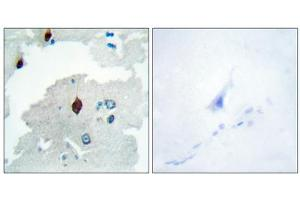 Image no. 2 for anti-Pituitary Tumor-Transforming 1 (PTTG1) (Internal Region) antibody (ABIN1849460)