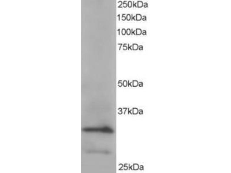 Western Blotting (WB) image for anti-Actin Related Protein 2/3 Complex, Subunit 2, 34kDa (ARPC2) (C-Term) antibody (ABIN2465173)