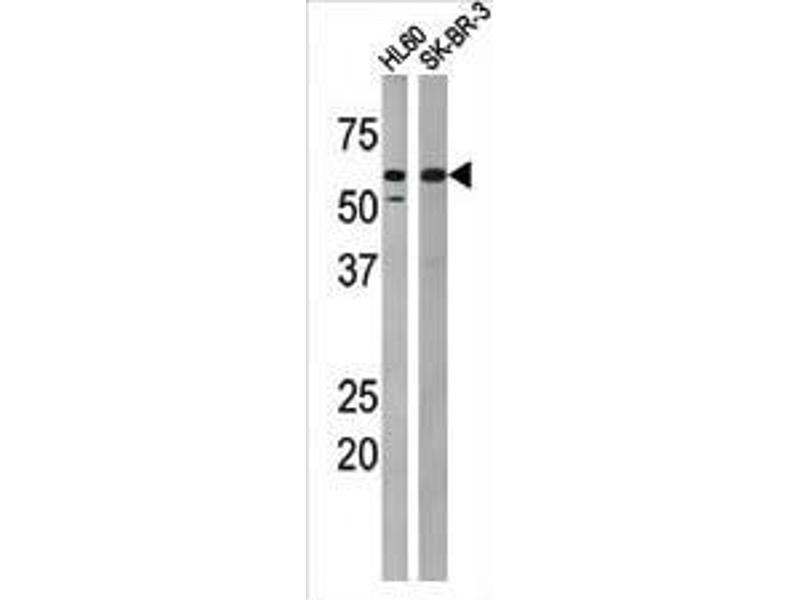 Western Blotting (WB) image for anti-Myelin Transcription Factor 1 (MYT1) (pThr495) antibody (ABIN389599)
