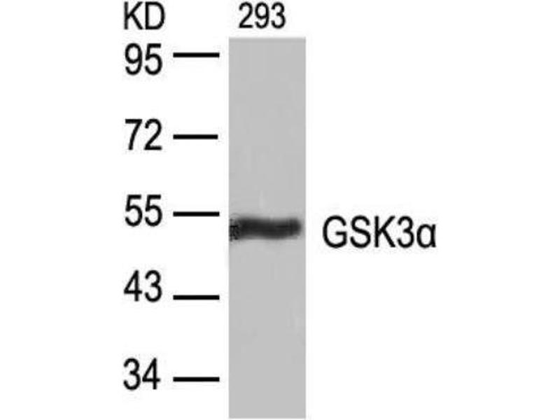 Western Blotting (WB) image for anti-Glycogen Synthase Kinase 3 alpha (GSK3a) antibody (ABIN257307)