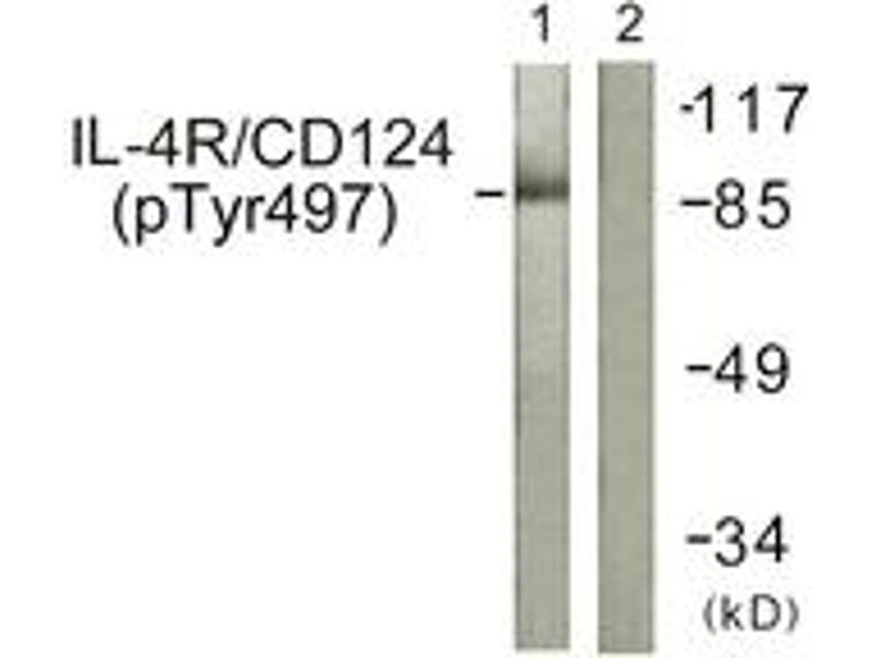 Western Blotting (WB) image for anti-Interleukin 4 Receptor (IL4R) (AA 463-512), (pTyr497) antibody (ABIN1531667)