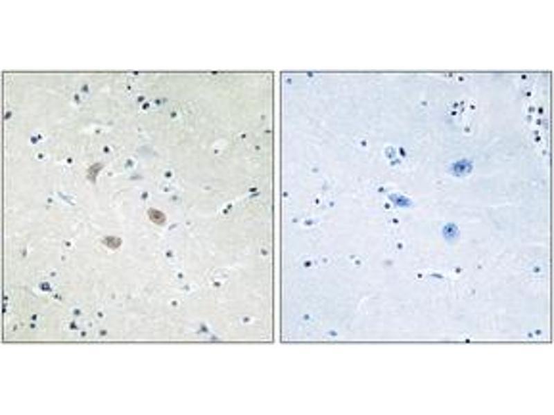 Immunohistochemistry (IHC) image for anti-V-Akt Murine Thymoma Viral Oncogene Homolog 2 (AKT2) (AA 432-481) antibody (ABIN1532797)