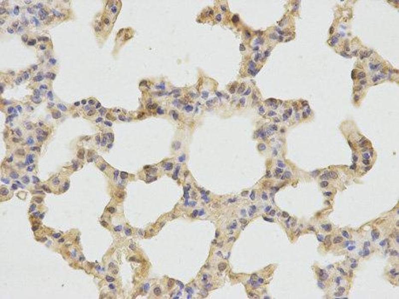 Immunohistochemistry (IHC) image for anti-Cathepsin D (CTSD) antibody (ABIN1872099)