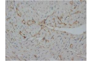 Immunohistochemistry (Paraffin-embedded Sections) (IHC (p)) image for anti-Insulin Receptor antibody (INSR) (AA 59-75) (ABIN1106088)