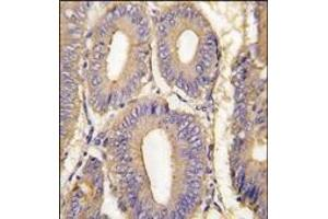 image for anti-PAK1 antibody (P21-Activated Kinase 1) (Thr423) (ABIN360317)
