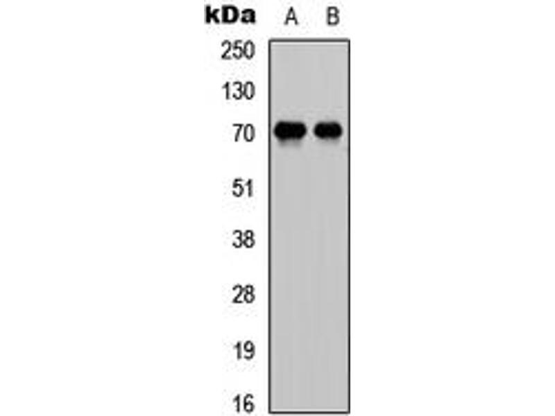 Western Blotting (WB) image for anti-E2F1 antibody (E2F Transcription Factor 1) (C-Term) (ABIN2704741)