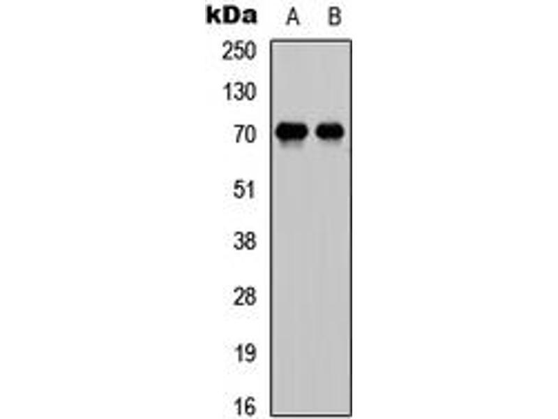 Western Blotting (WB) image for anti-E2F Transcription Factor 1 (E2F1) (C-Term) antibody (ABIN2704741)