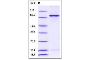 Image no. 1 for NIMA related kinase 3 (NEK3) (AA 1-509) (Active) protein (GST tag,His tag) (ABIN2008378)