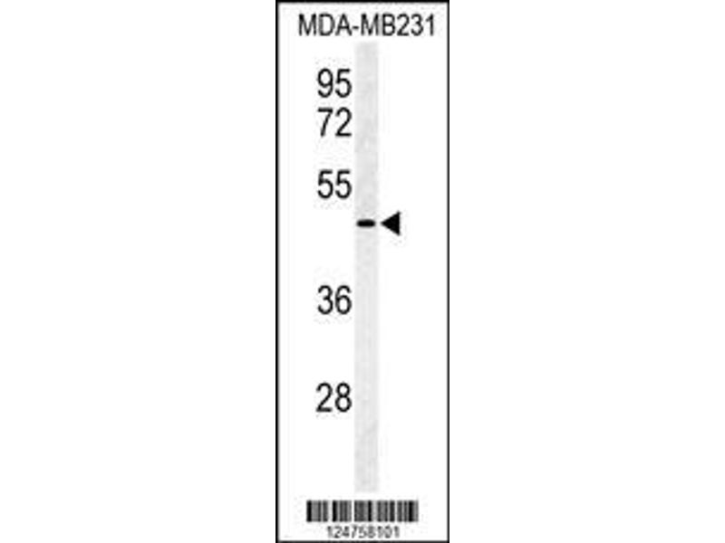Western Blotting (WB) image for anti-SMAD, Mothers Against DPP Homolog 3 (SMAD3) (AA 186-215), (Ser208) antibody (ABIN653953)