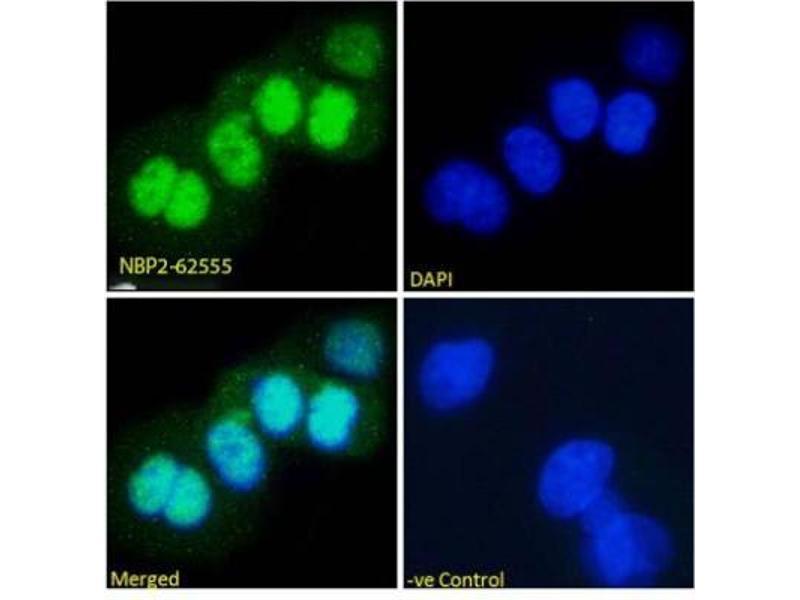 Immunofluorescence (IF) image for anti-Tumor Protein P53 (TP53) (AA 371-380), (C-Term) antibody (ABIN5681487)