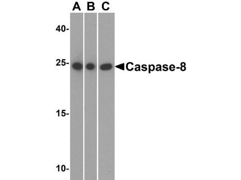 Western Blotting (WB) image for anti-Caspase 8, Apoptosis-Related Cysteine Peptidase (CASP8) (C-Term) antibody (ABIN4288165)