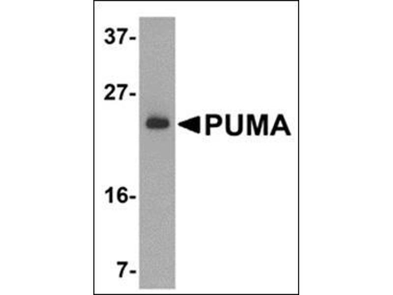 Western Blotting (WB) image for anti-BBC3 antibody (BCL2 Binding Component 3) (N-Term) (ABIN500559)