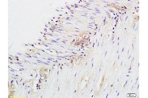 Immunohistochemistry (Paraffin-embedded Sections) (IHC (p)) image for anti-CD28 (CD28) (AA 20-45) antibody (ABIN674604)
