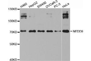 Image no. 3 for anti-Neural Precursor Cell Expressed, Developmentally Down-Regulated 9 (NEDD9) antibody (ABIN3023331)