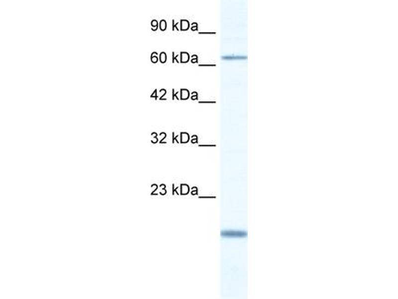 Western Blotting (WB) image for anti-T-Box 5 (TBX5) (N-Term) antibody (ABIN2777915)