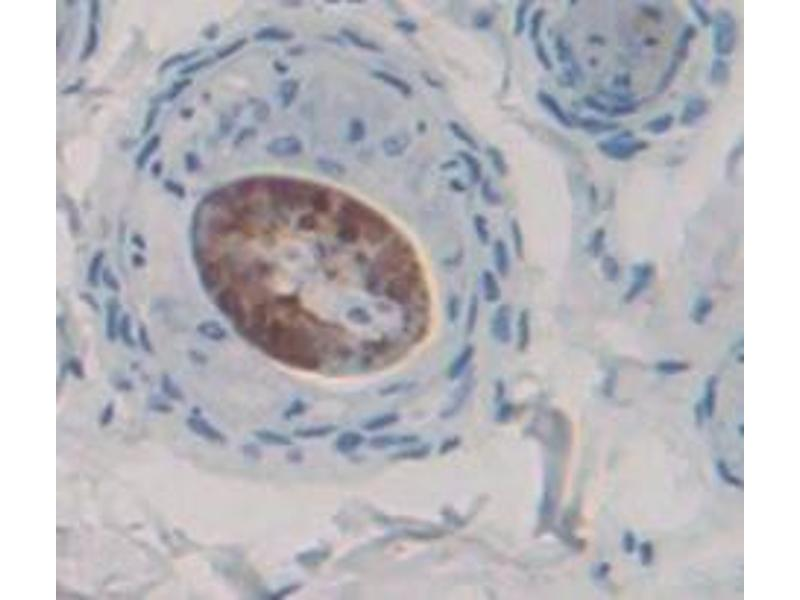 Immunohistochemistry (Paraffin-embedded Sections) (IHC (p)) image for anti-Myeloid Differentiation Primary Response Gene (88) (MYD88) (AA 1-296) antibody (ABIN2915969)