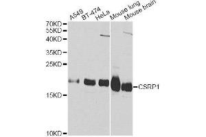 Image no. 3 for anti-Cysteine and Glycine-Rich Protein 1 (CSRP1) antibody (ABIN3021360)