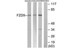 Image no. 1 for anti-Frizzled Family Receptor 9 (FZD9) (AA 542-591) antibody (ABIN1535616)