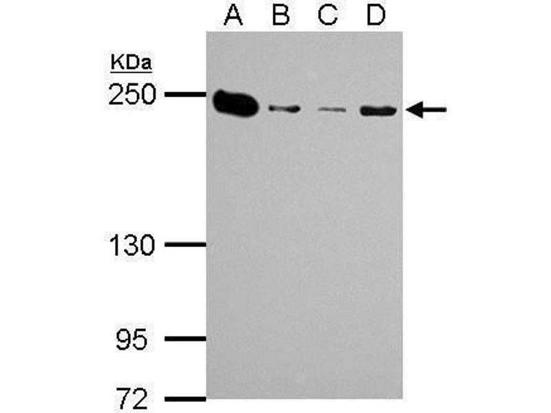 Western Blotting (WB) image for anti-Non-Muscle Myosin Heavy Polypeptide 9 (MYH9) (N-Term) antibody (ABIN2855153)