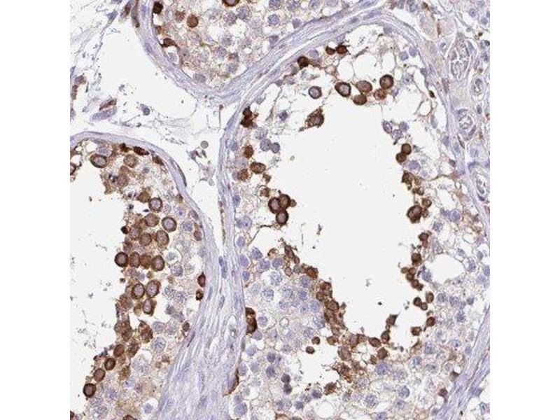 Immunohistochemistry (IHC) image for anti-Calmegin (CLGN) antibody (ABIN4263810)