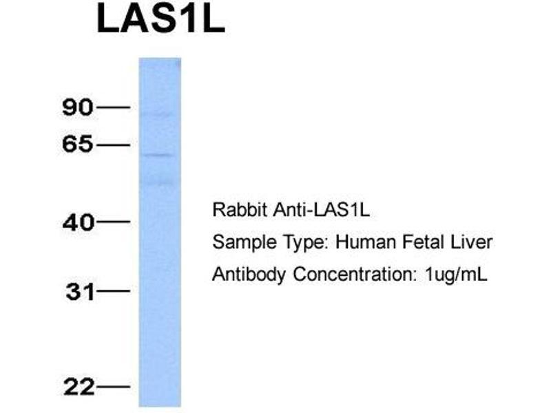 Western Blotting (WB) image for anti-LAS1-Like (S. Cerevisiae) (LAS1L) (Middle Region) antibody (ABIN183053)