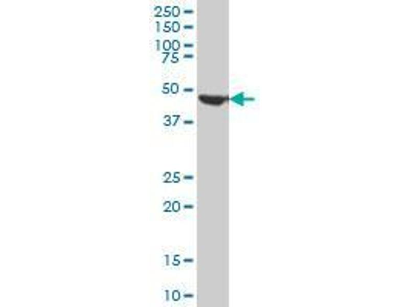 Immunohistochemistry (IHC) image for anti-FH antibody (Fumarate Hydratase) (AA 33-511) (ABIN394387)