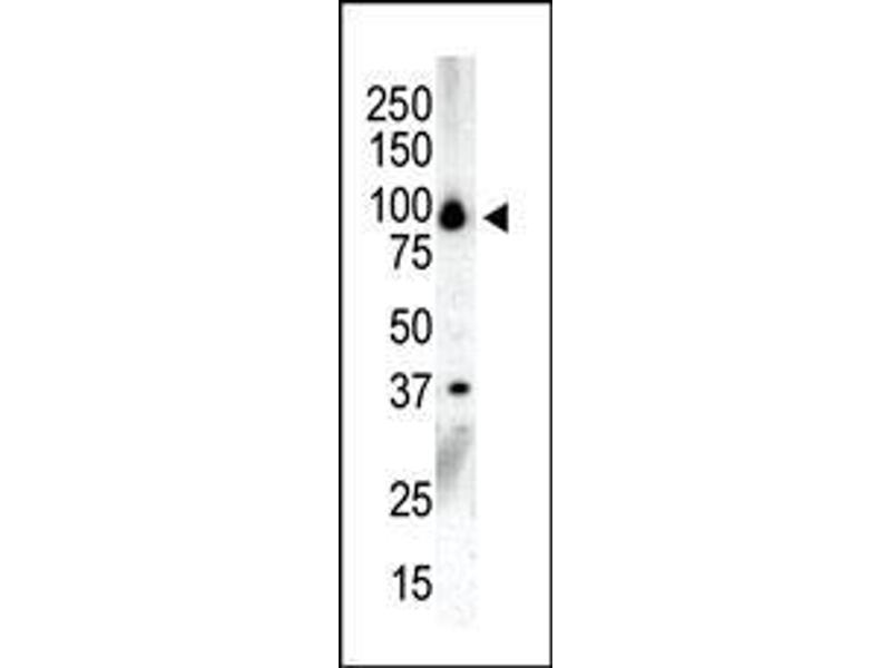 Western Blotting (WB) image for anti-Protein Kinase D3 (PRKD3) (AA 860-890), (C-Term) antibody (ABIN391015)