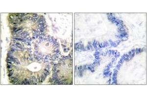 Immunohistochemistry (IHC) image for anti-Cytochrome C, Somatic (CYCS) antibody (ABIN1533252)