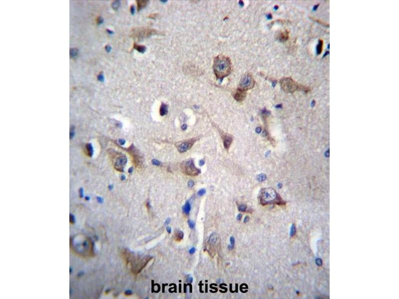 Immunohistochemistry (Paraffin-embedded Sections) (IHC (p)) image for anti-Yip1 Interacting Factor Homolog B (S. Cerevisiae) (YIF1B) (AA 81-110), (N-Term) antibody (ABIN955611)