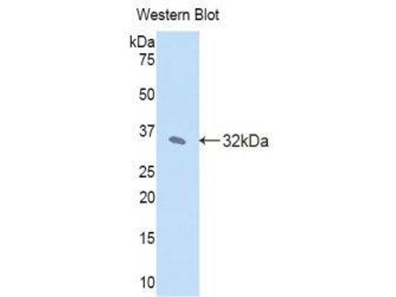 Western Blotting (WB) image for anti-Janus Kinase 2 (JAK2) (AA 120-367) antibody (ABIN1176454)