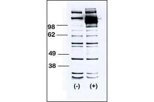 Image no. 3 for anti-Colony Stimulating Factor 1 Receptor (CSF1R) (AA 940-971), (C-Term) antibody (ABIN391880)