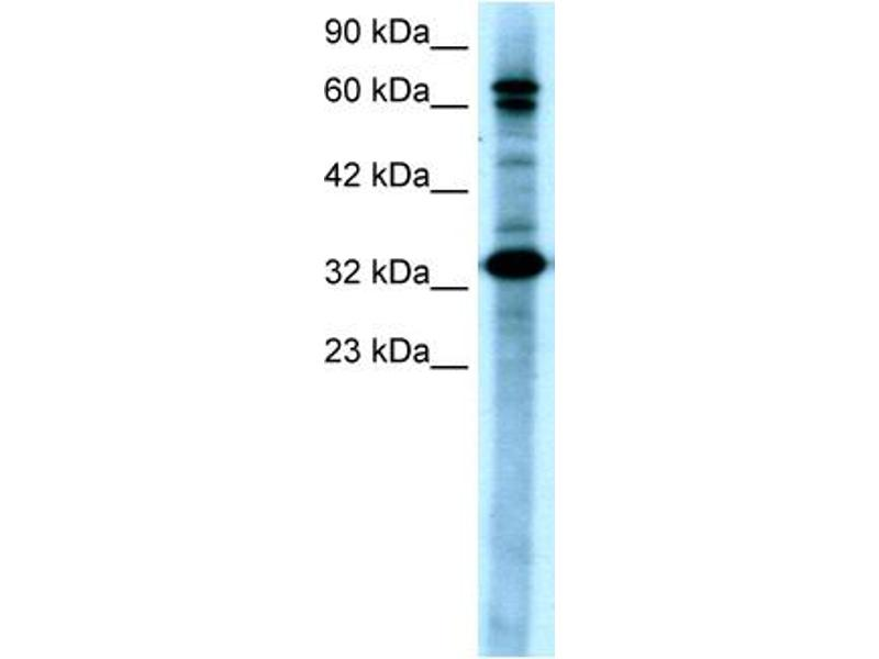 Western Blotting (WB) image for anti-TGF-beta Activated Kinase 1/MAP3K7 Binding Protein 2 (TAB2) (N-Term) antibody (ABIN2779619)