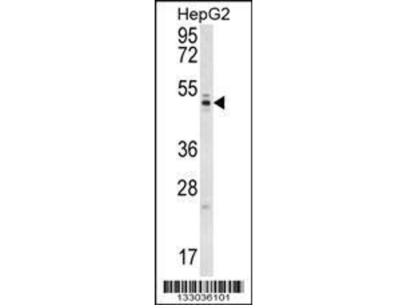 Western Blotting (WB) image for anti-WD Repeat Domain 12 (WDR12) (AA 210-239), (Center) antibody (ABIN657000)