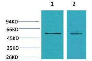 Image no. 1 for anti-Calcium Channel, Voltage-Dependent, beta 3 Subunit (CACNB3) antibody (ABIN3188037)