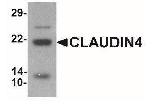 Western Blotting (WB) image for anti-Claudin 4 (CLDN4) (C-Term) antibody (ABIN4299011)