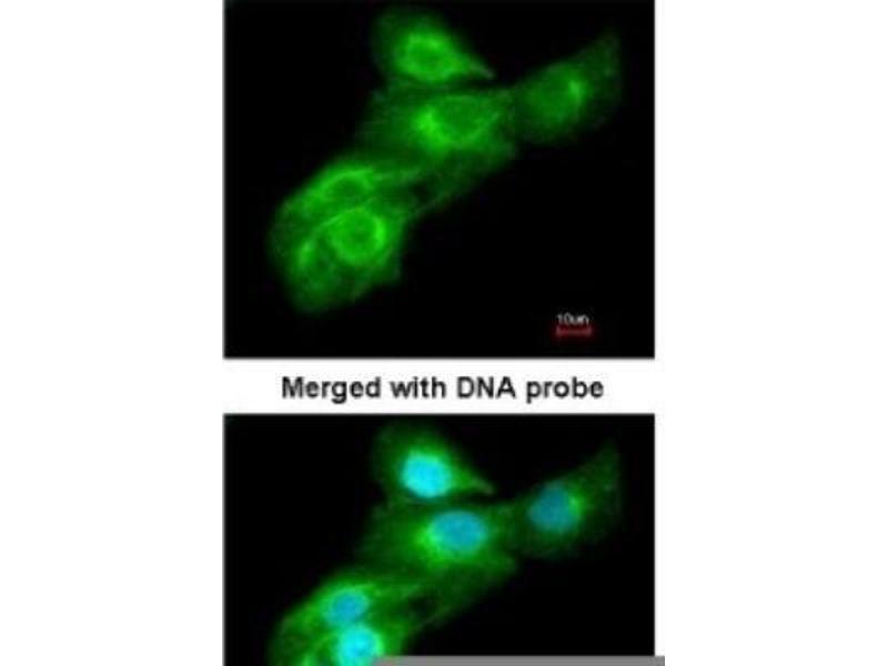 Immunofluorescence (IF) image for anti-Glucokinase (Hexokinase 4) (GCK) (Center) antibody (ABIN443086)