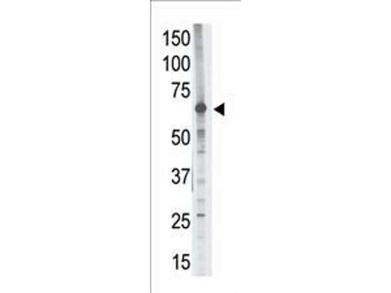 Western Blotting (WB) image for anti-MMP14 antibody (Matrix Metallopeptidase 14 (Membrane-inserted)) (AA 145-174) (ABIN390138)