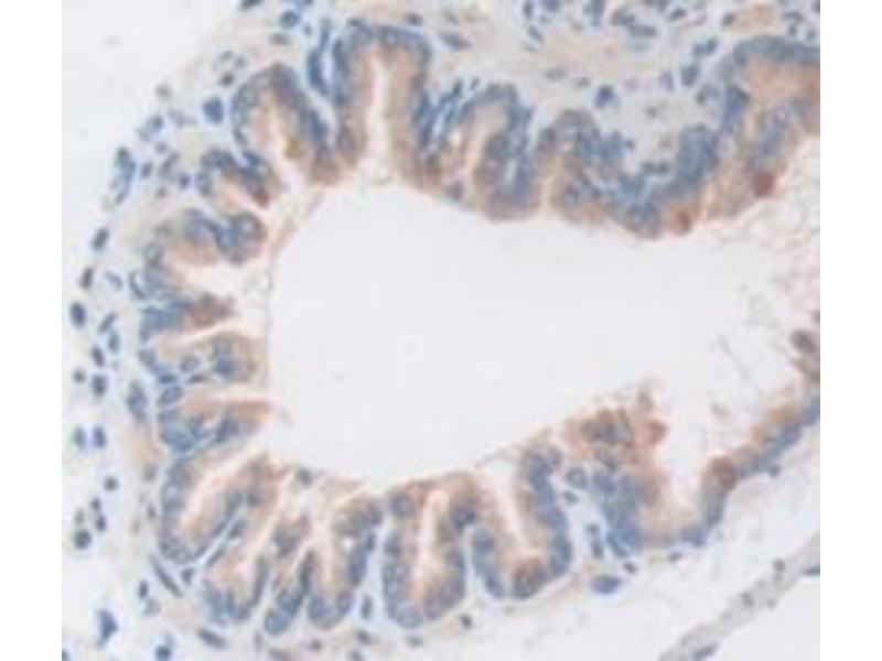 Immunohistochemistry (Paraffin-embedded Sections) (IHC (p)) image for anti-Caspase 1 (CASP1) (AA 119-296) antibody (ABIN2902446)