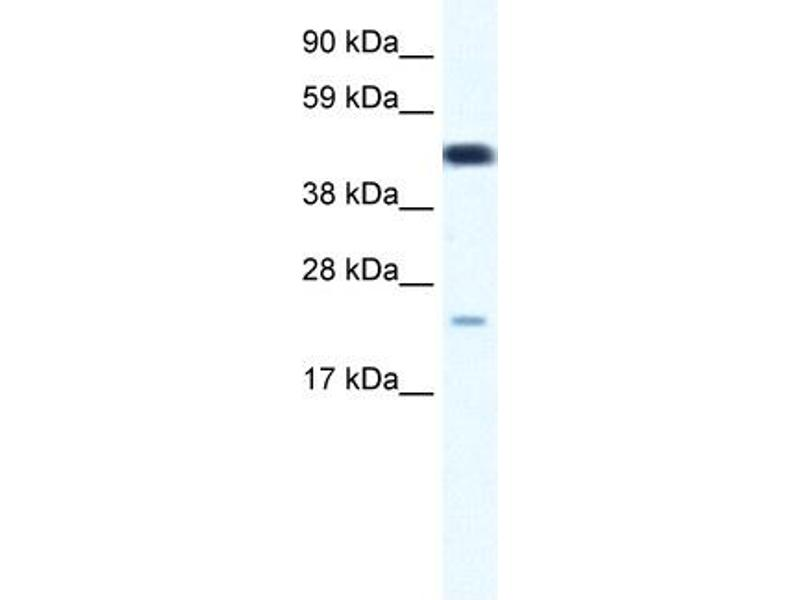 Western Blotting (WB) image for anti-Transcription Factor 7 (T-Cell Specific, HMG-Box) (TCF7) (Middle Region) antibody (ABIN2776021)