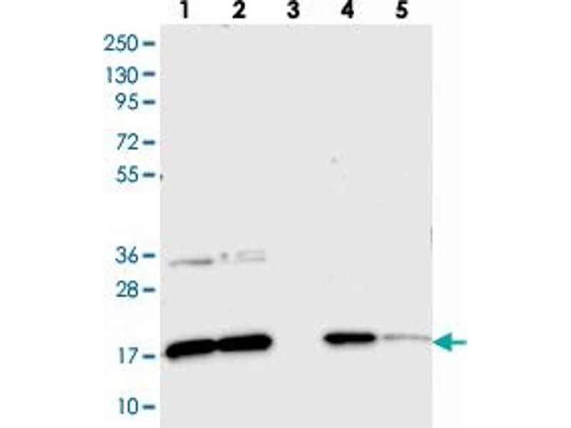 Western Blotting (WB) image for anti-Canopy 2 Homolog (Zebrafish) (CNPY2) antibody (ABIN5575693)