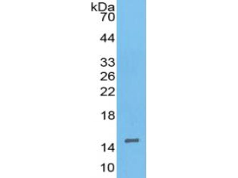 Inhibin, beta A (INHBA) ELISA Kit (3)