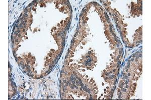 Image no. 3 for anti-Transforming, Acidic Coiled-Coil Containing Protein 3 (TACC3) antibody (ABIN2733177)