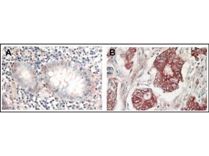 Immunohistochemistry (Paraffin-embedded Sections) (IHC (p)) image for anti-AKT antibody (V-Akt Murine Thymoma Viral Oncogene Homolog 1) (C-Term) (ABIN615022)