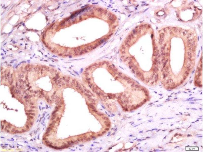 Immunohistochemistry (Paraffin-embedded Sections) (IHC (p)) image for anti-Antigen Identified By Monoclonal Antibody Ki-67 (MKI67) (AA 1250-1300) antibody (ABIN677858)