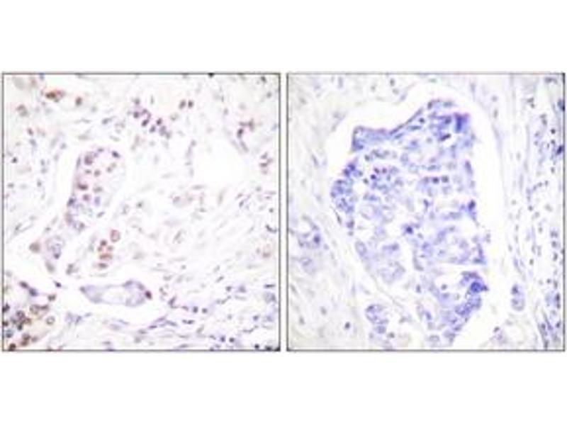 Immunohistochemistry (IHC) image for anti-Cyclin A1 (CCNA1) (AA 411-460) antibody (ABIN1533248)