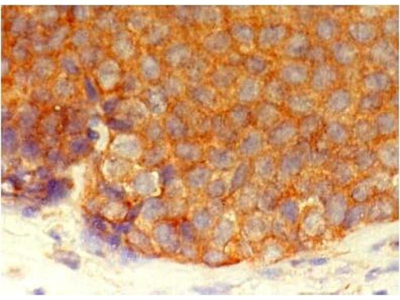 Immunohistochemistry (IHC) image for anti-Inhibitor of kappa Light Polypeptide Gene Enhancer in B-Cells, Kinase gamma (IKBKG) (AA 262-319) antibody (ABIN567775)