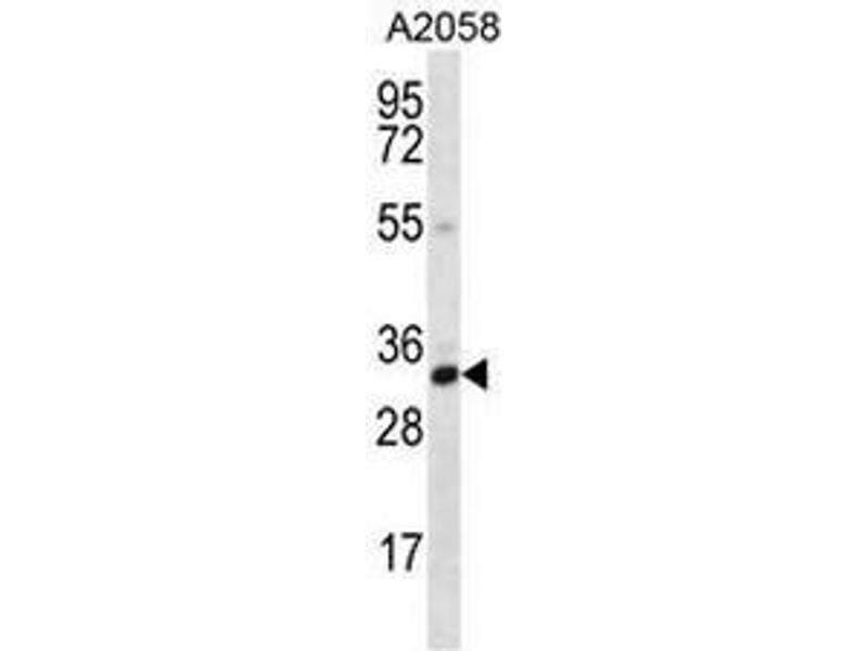 Western Blotting (WB) image for anti-Calponin 2 (CNN2) (AA 8-36), (N-Term) antibody (ABIN951012)