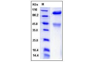 Image no. 1 for Met Proto-Oncogene (MET) (AA 1-929), (Extracellular Domain) (Active) protein (His tag) (ABIN2008064)