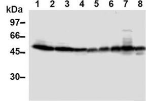 Image no. 1 for anti-Thioredoxin Interacting Protein (TXNIP) antibody (ABIN567794)